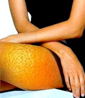 Антицеллюлитный массаж проблемных зон. Учебное видео