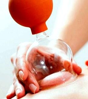 Баночный массаж. Медицинское видео